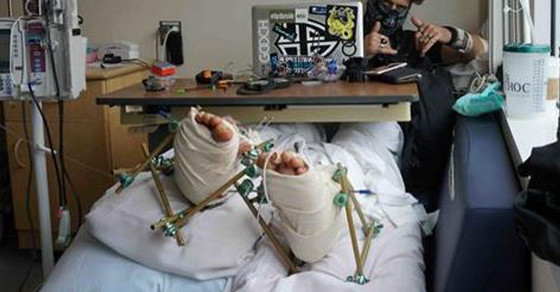 YouTuber 8Booth mit zwei gebrochenen Füßen im Krankenhaus