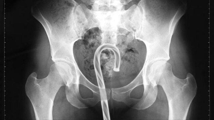 Diese Objekte haben US-Ärzte 2016 in ihren Patienten gefunden