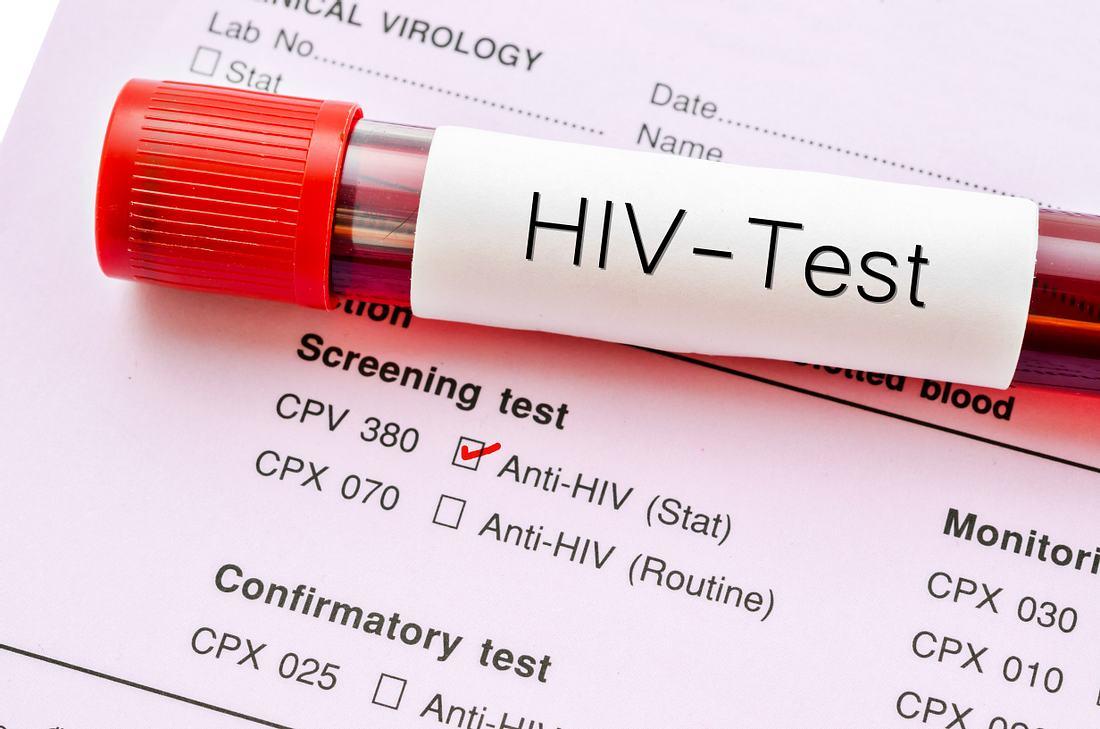 Röhrchen mit Blutprobe auf HIV-Test