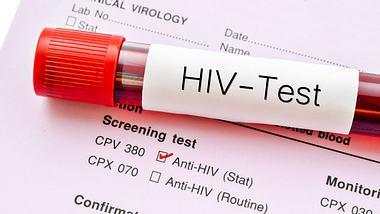 Röhrchen mit Blutprobe auf HIV-Test - Foto: iStock / Gam1983