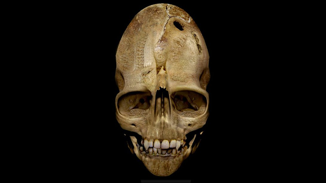 Der sogenannte Andover Skull