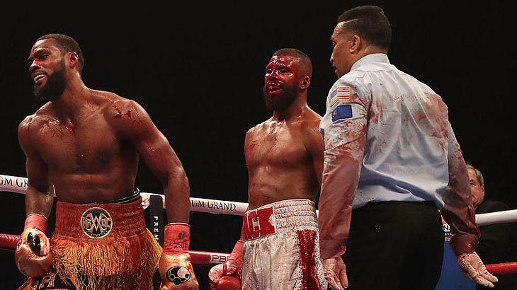 Boxer Badou Jack erleidet schlimme Platzwunde.