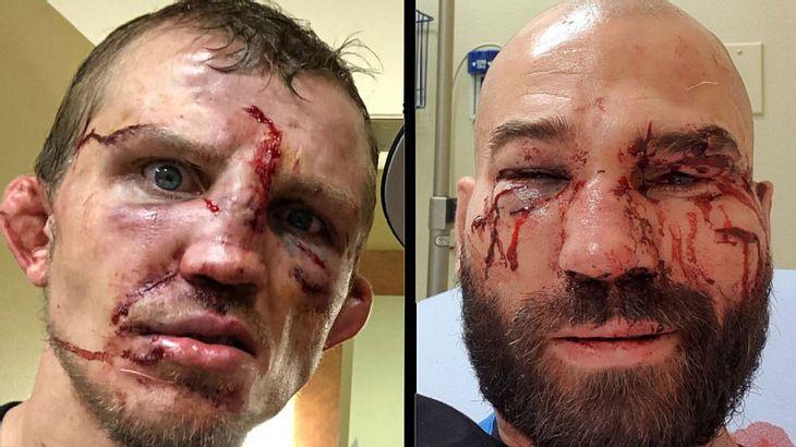 Bare Knuckle FC: Artem Lobov und Jason Knight nach dem Kampf