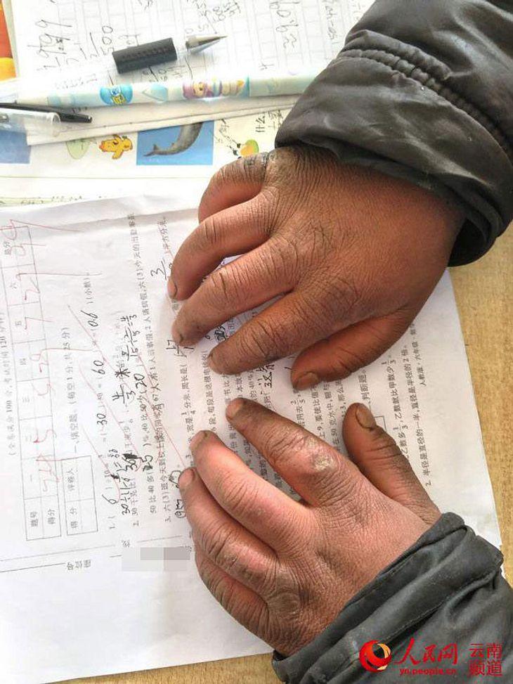 Wang Fumans Hände