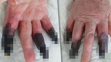 Corona-Finger