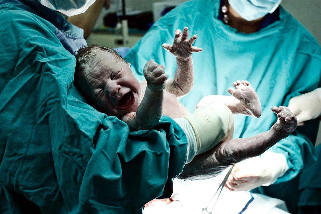 Neugeborenes direkt nach der Geburt in den Händen von Ärzten