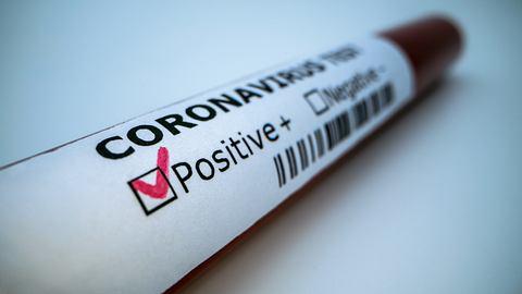 Bosch bringt Corona-Schnelltest auf den Markt