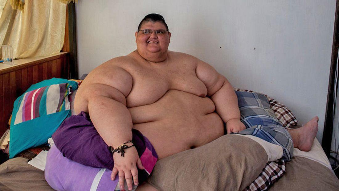 Dickster Mann der Welt: Juan Pedro Franco aus Mexiko wog 600 Kilo