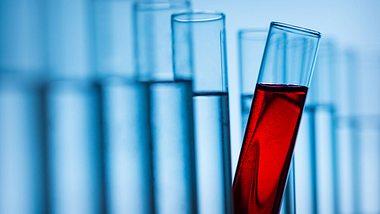 Vaterschaftstest-Kosten: So teuer ist ein DNA-Test - Foto: iStock / NoSystem images