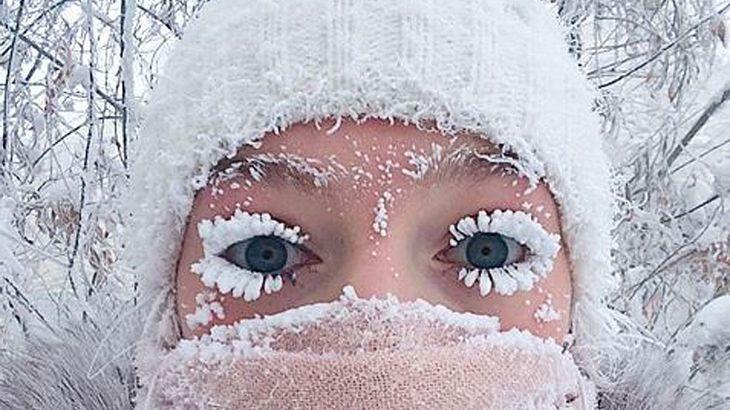 Die Folgen von minus 62 Grad Celsius