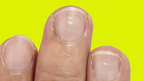 Das verraten deine Fingernägel über deine Gesundheit