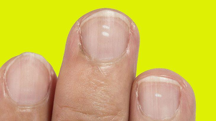 Weißer Punkt auf den Fingernägeln
