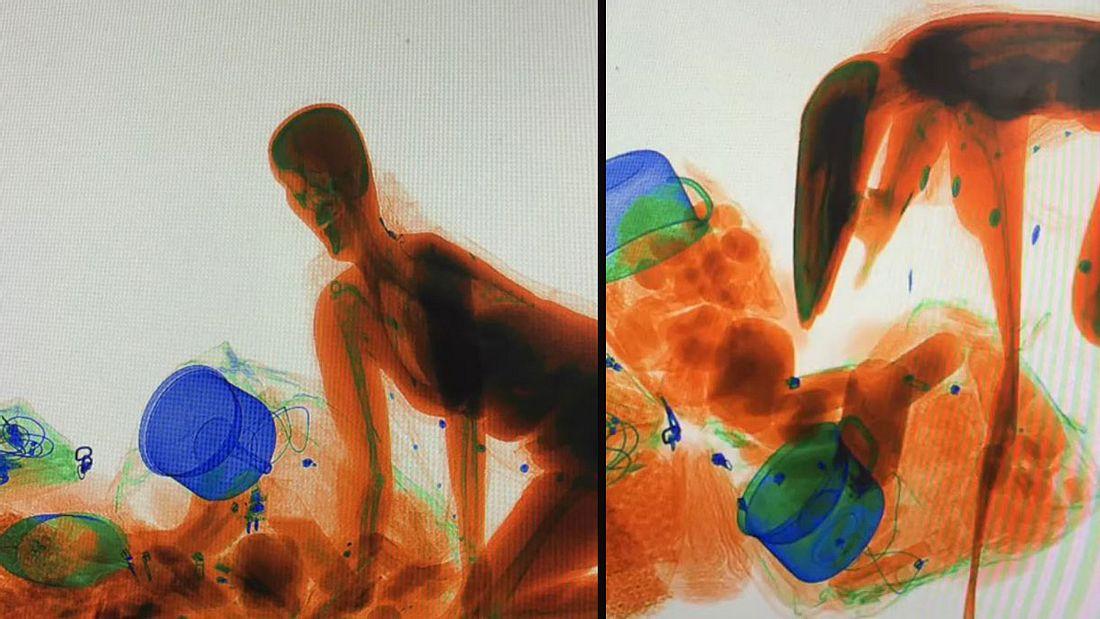 Frau steigt in Röntgenmaschine und wird zum Alien