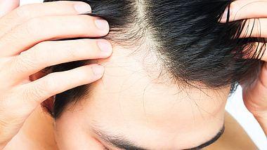 Mann mit Haarausfall - Foto: iStock/mraoraor