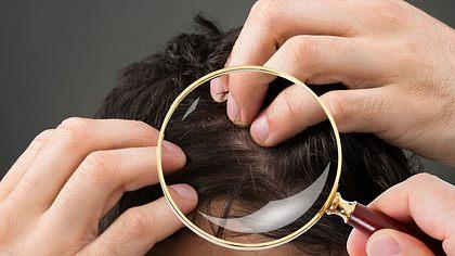 Kein Bock auf Glatze? Was tun bei Haarausfall