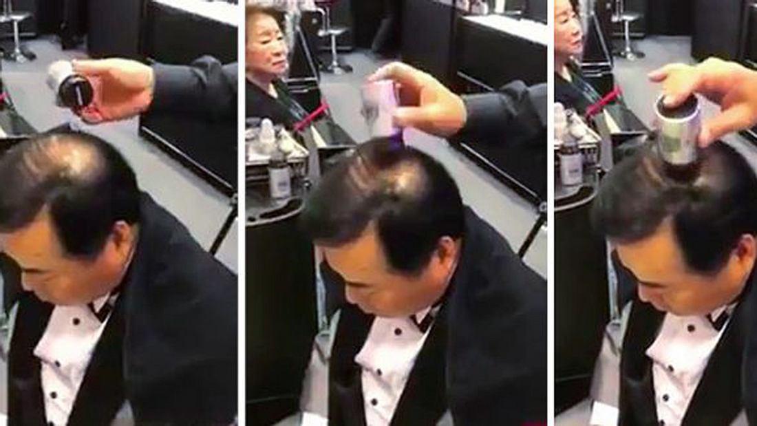 Haarstempel zur Bekämpfung von Glatzen und erblich bedingtem Haarausfall