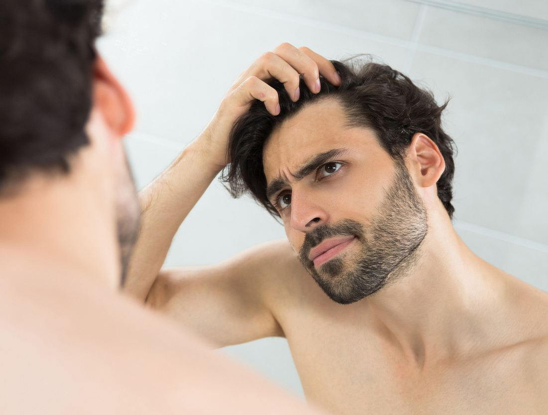Männer und Haarausfall: Diese 7 Hausmittel beugen einer Glatze vor