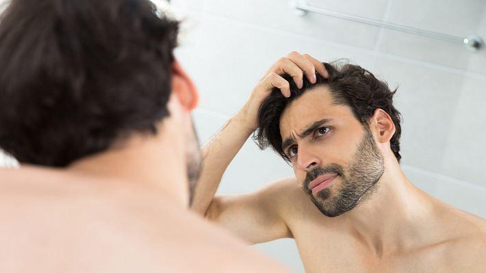 Männer und Haarausfall: Diese 7 Hausmittel beugen einer Glatze vor - Foto: iStock/EmirMemedovski