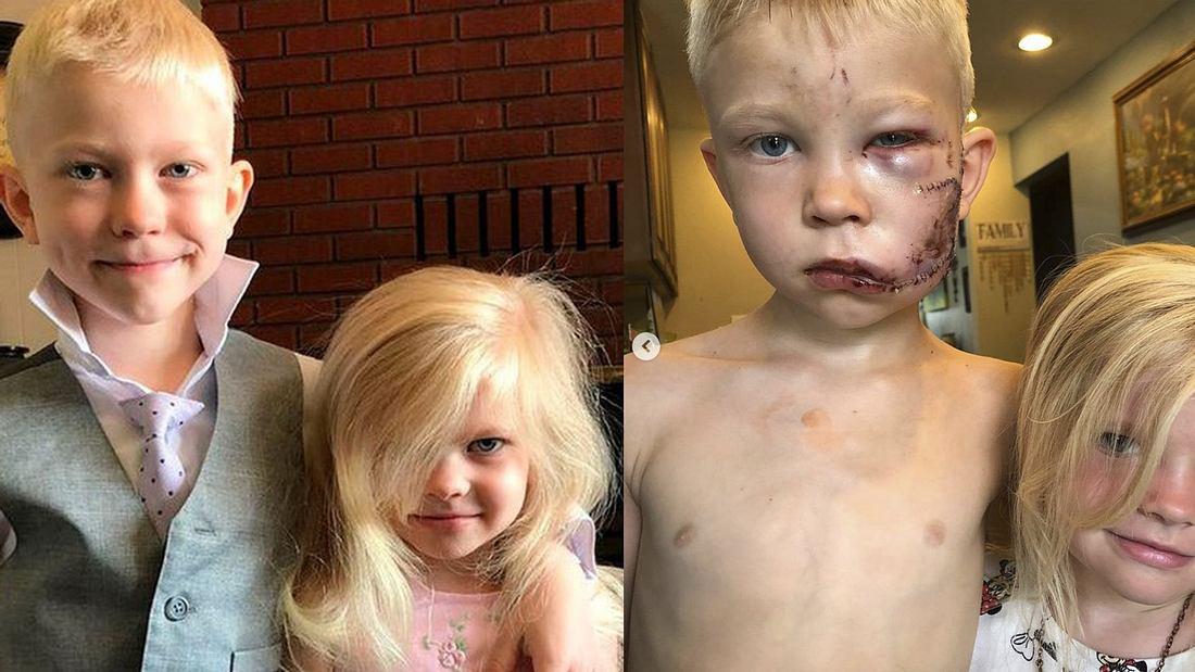 Der sechsjährige Bridger und seine kleine Schwester vor und nach dem Angriff von einem Schäferhund