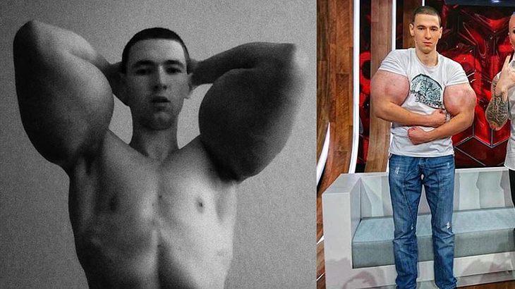 Kirill Tereshin hat einen Bizeps-Umfang von 60 cm