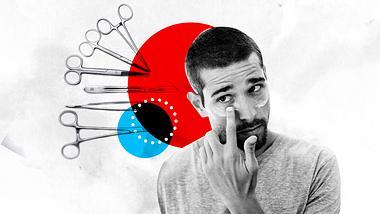 Augenringe entfernen: Diese Möglichkeiten gibt es für Männer