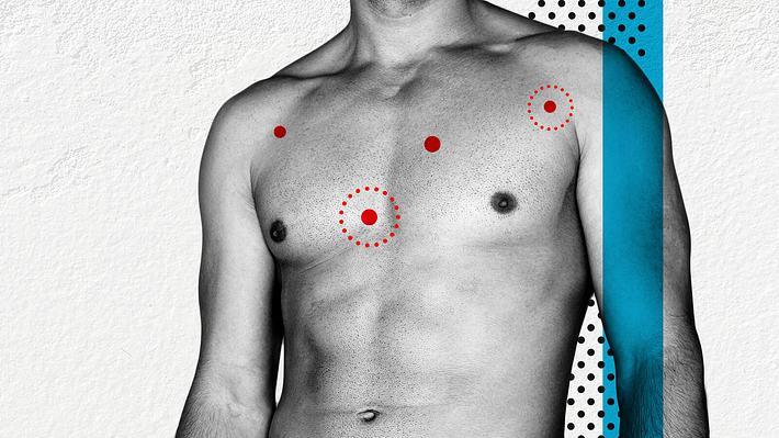 Pickel auf der Brust - Foto: iStock / sidsnapper