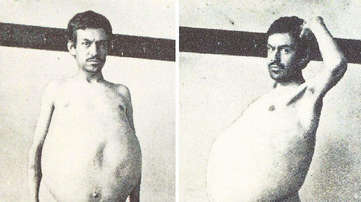 Dieser unbekannte Mann litt unter der sogenannten Hirschsprung-Krankheit