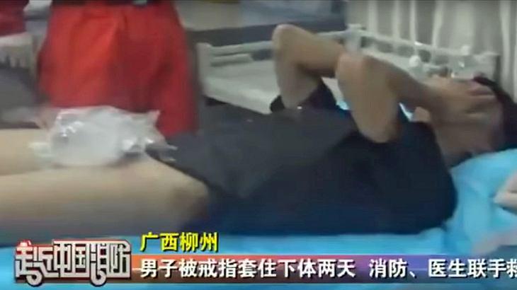 Ein chinesischer Mann hat sich als Treuebeweis seinen Ehering über den Penis gezogen