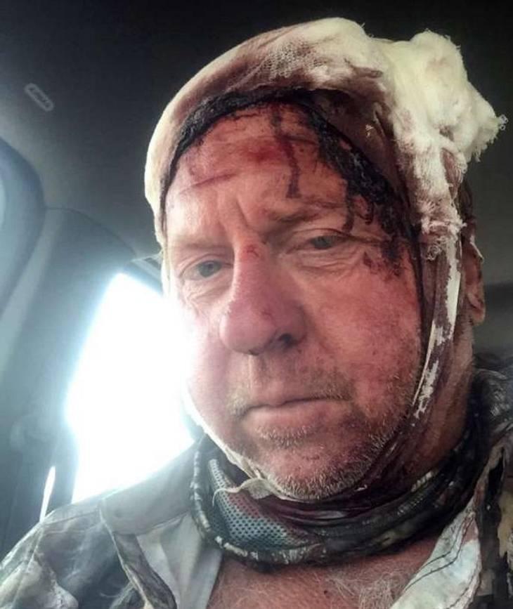 Ein US-Jäger wurde von einem Grizzlybären attackiert