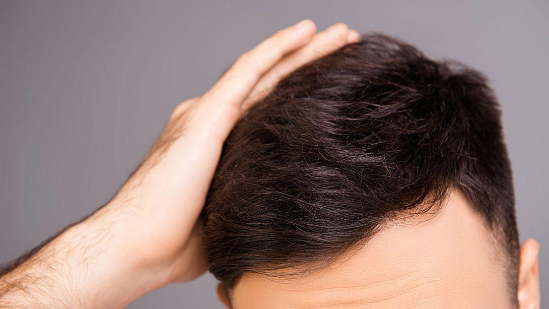 Für einen schuppenfreien Kopf - Foto: iStock / Deagreez