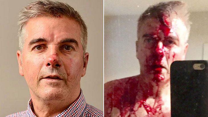 Mit bloßen Händen: Vater zerstört fünf Machete schwingende Räuber