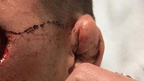 Das ist die schlimmste Kampfsport-Verletzung aller Zeiten