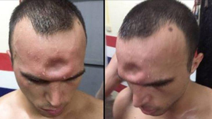Horror-Verletzung nach Ellenbogenschlag