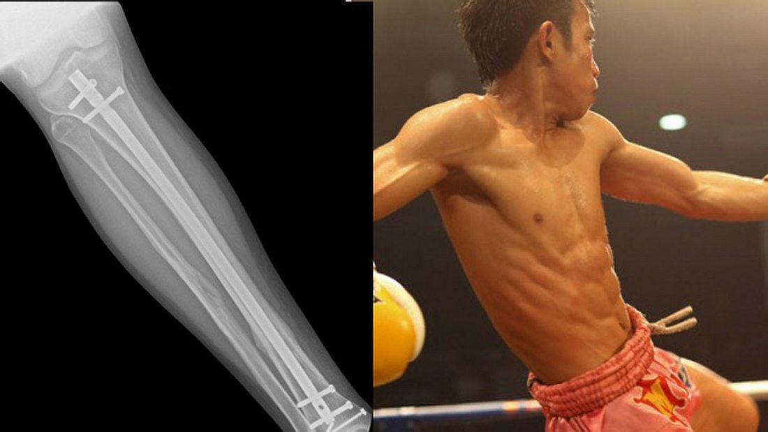 Muay-Thai-Kämpfer implantierte sich illegal eine Titan-Schiene