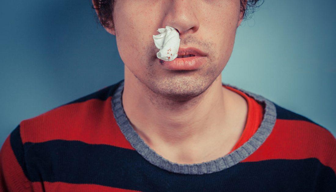 Nasenbluten: Ursachen & Was tun bei Nasenbluten?