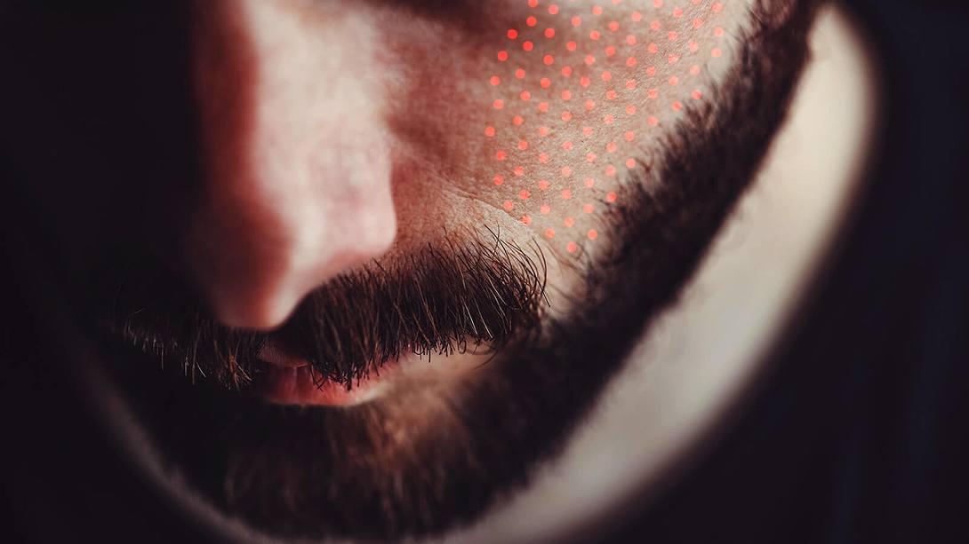Männergesicht mit roten Punkten - Foto: iStock / Bojanikus, Collage / bearbeitet durch Männersache