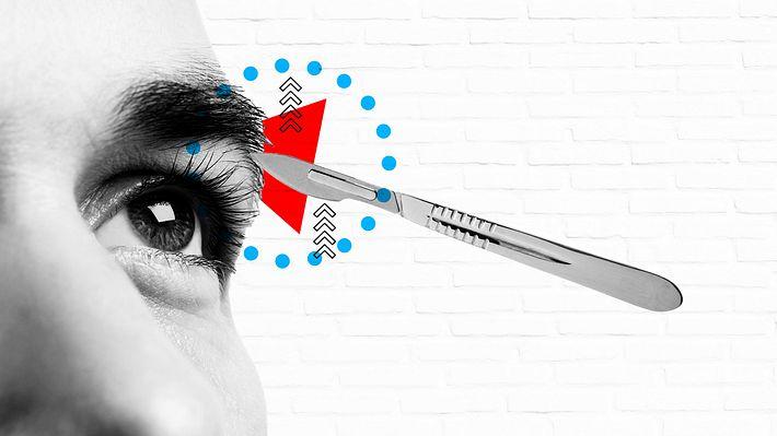 Auge und Skalpell - Foto: iStock / medlar ; iStock / ADragan ; Männersache
