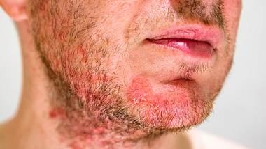 Mann mit roten Hautirritationen im Gesicht - Foto: iStock / doble-d