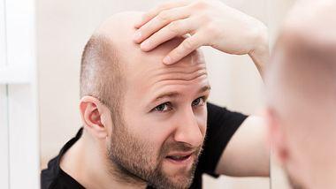 Studien: Männer mit Glatze sterben häufiger an Covid-19