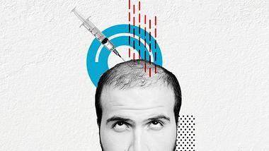 PRP-Behandlung: Kosten, Risiken und Methode der Haarwurzeltherapie
