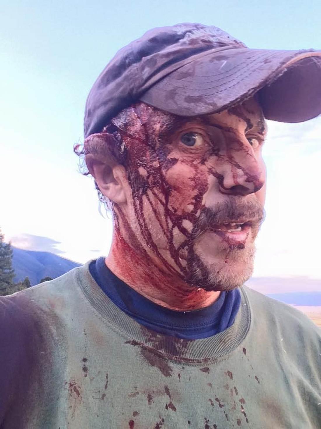 Überlebte die Attacke eines Grizzly-Bären: Todd Orr
